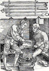 Cautérisation traditionnelle aux fers chauds