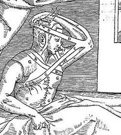 Gaspare Tagliacozzi, De curtorum chirurgia per insitionem, 1597