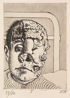 Otto Dix, Transplantation, 1924, New York, The Museum of Modern Art