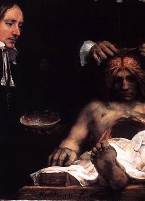 Rembrandt van Rijn, La Leçon d'anatomie du docteur Joan Deyman, 1656, Rijkmuseum, Amsterdam.